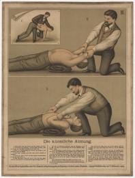 Serie - Eschner-von Esmarchs - Erste Hilfe bei Ungl�cksf�llen
