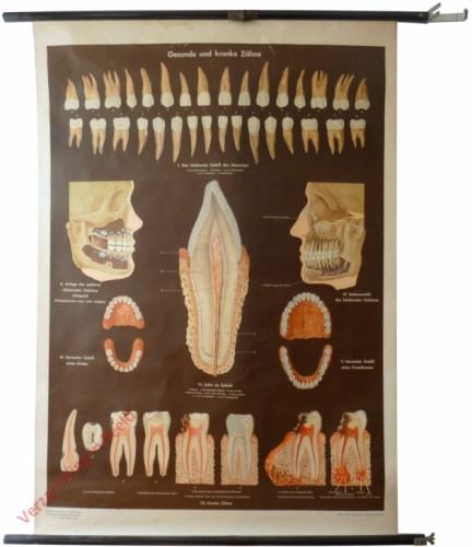 8 - Gesunde und kranke Zähne