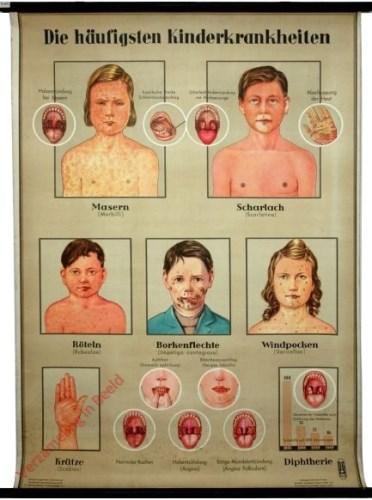 1 - Der haufigsten Kinderkrankheiten