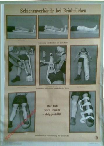 4 - Schienenverbände bei Beinbrüchen