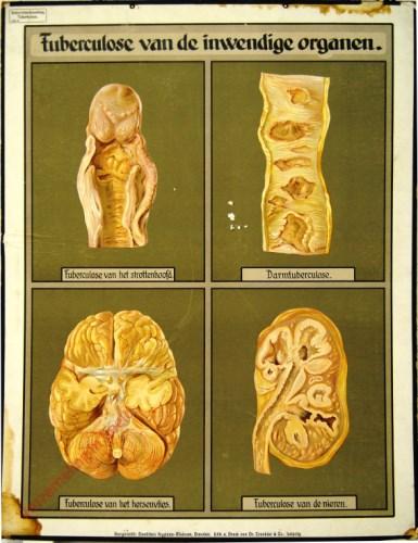 8 - Tuberculose van de inwendige organen