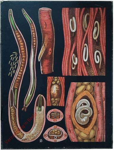 32 - Trichina spiralis. Trichine