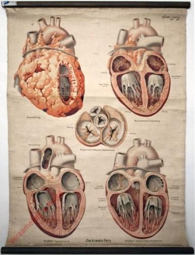 4 - Herztafeln II. Das kranke Herz