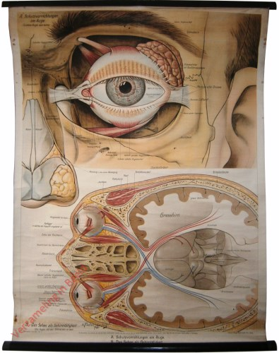 13 - Augentafeln I. Schutzvorrichtungen am Auge
