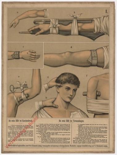 1 - Die erste Hilfe bei Knochenbruch. Die erste Hilfe bei Verwundungen [oude versie]